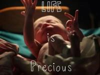 Живот је дар…. шта учинити ако сте починили абортус (реч свештеника)
